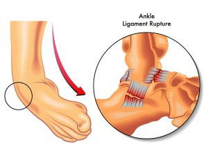 Reconstructive Foot Surgery Procedures Sugar Land